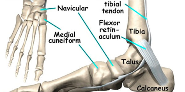 What is the Navicular?