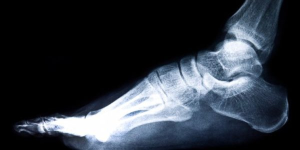 Stress Fractures of the Foot – A Cause of Swelling and Pain