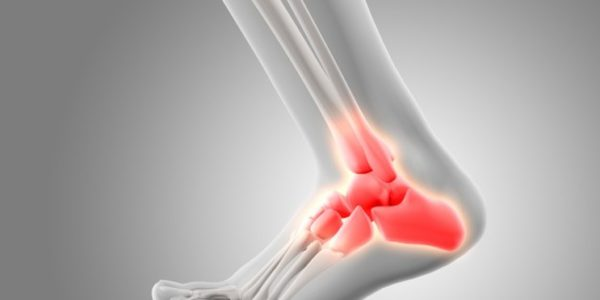 5 Reasons You Have Heel Pain and What You Can Do