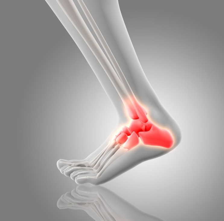 Causes for Heel Pain